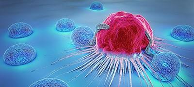 Was wäre, wenn der Tumor gar nicht das Problem ist? – Lothar Hirneise